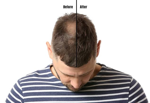 انواع روش های جدید ترمیم مو