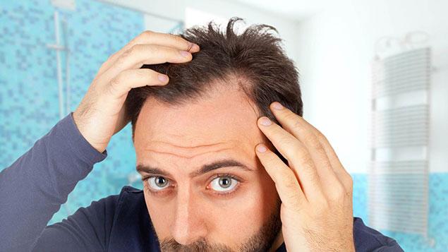 مزایای کاشت مو به روش micro fit