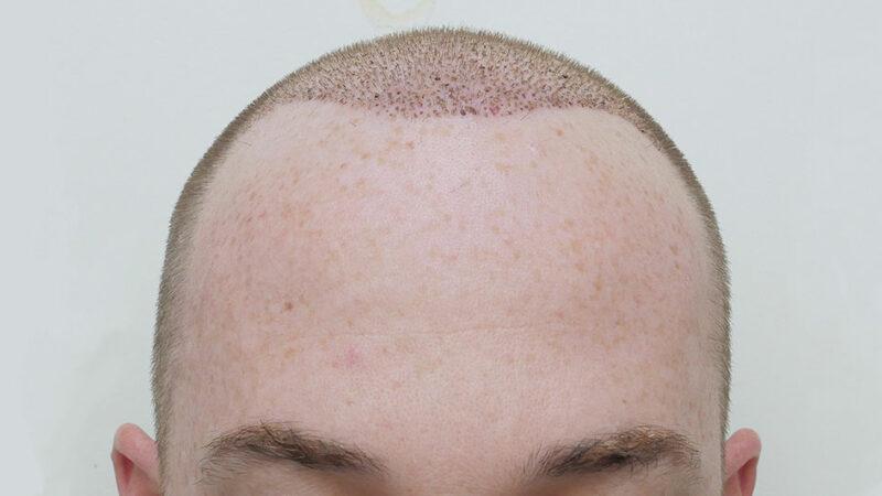آیا کاشت مو در محل سوختگی سر امکان پذیر است؟