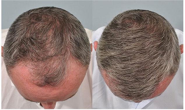 مراحل کاشت مو به روش micro fit چگونه انجام می شود؟