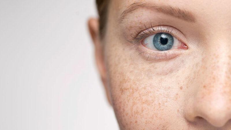 بررسی روش های رفع ضایعات رنگی پوست
