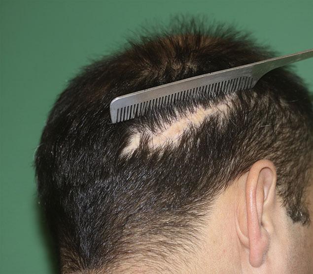 خط بخیه در کاشت مو و آشنایی با روش های ترمیم مو