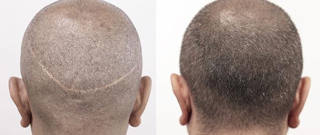 رفع خط بخیه در کاشت مو؛ ساده و طبیعی