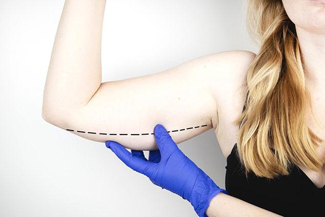 بهترین کاندیداها برای جراحی لیفت بازو