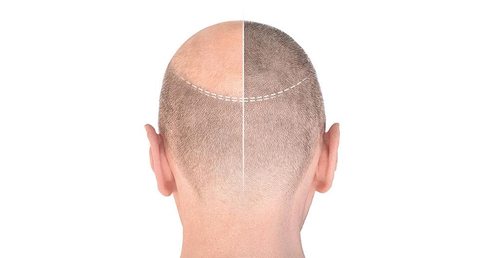 کاشت مو به روش micro fit چگونه است؟