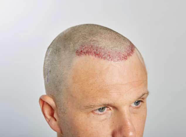 معایب کاشت مو به روش ترکیبی