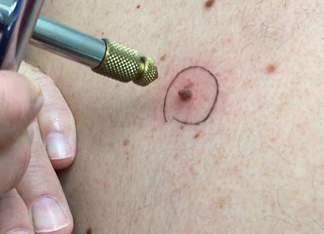 نحوه عملکرد کرایو پوست چیست؟