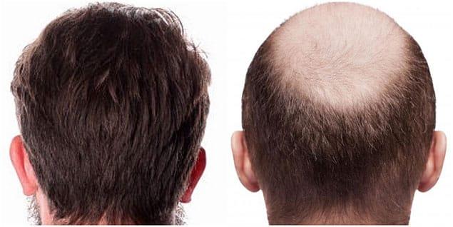 هزینه ی کاشت مو به روش ترکیبی
