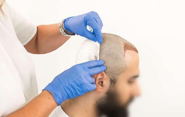 مدت بی حسی سر بعد از کاشت مو به چه عواملبستگی دارد
